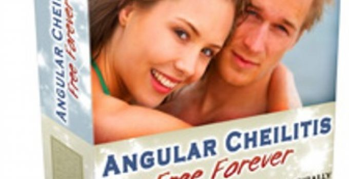 Angular Cheilitis Free Forever e-cover