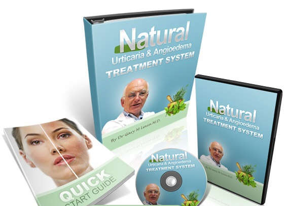 Natural Urticaria & Angioedema Treatment System ebook cover