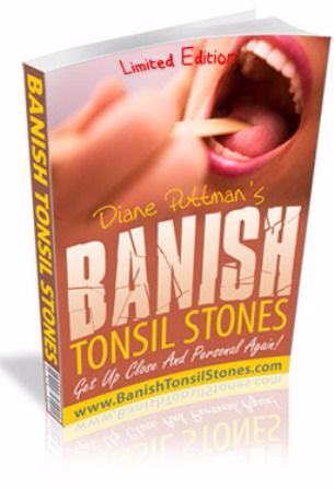 Banish Tonsil Stones e-cover