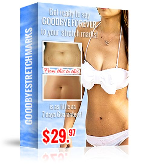 Goodbye Stretch Marks book cover