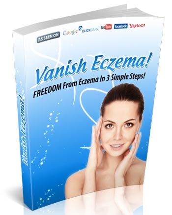Vanish Eczema ebook cover