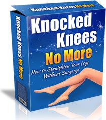 Knocked Knees No More Book Cover